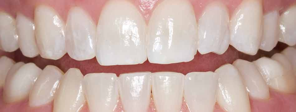 how to use whitening gel without tray