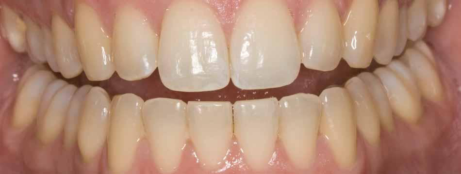 Before Opalescence tooth whitening system