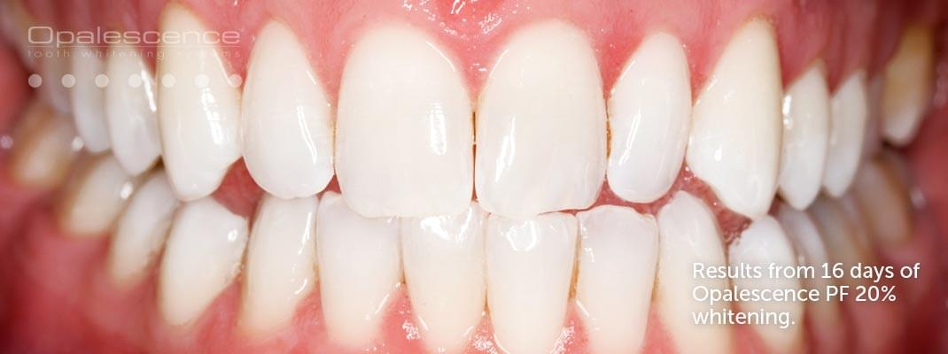 After Opalescence tooth whitening system